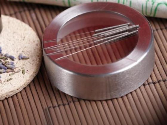 *Acupuncture